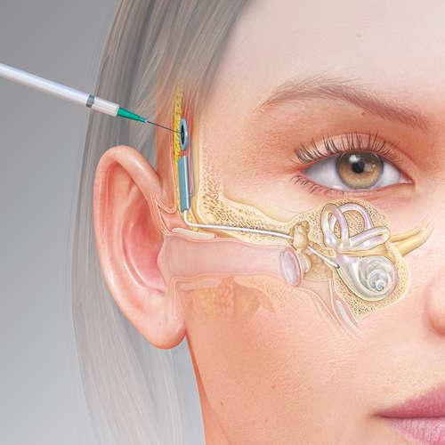 rendu 3D pour une chirurgie de l'oreille